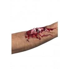 Zranění Zlomená kost