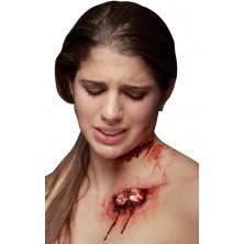 Zranění Vystupující kost